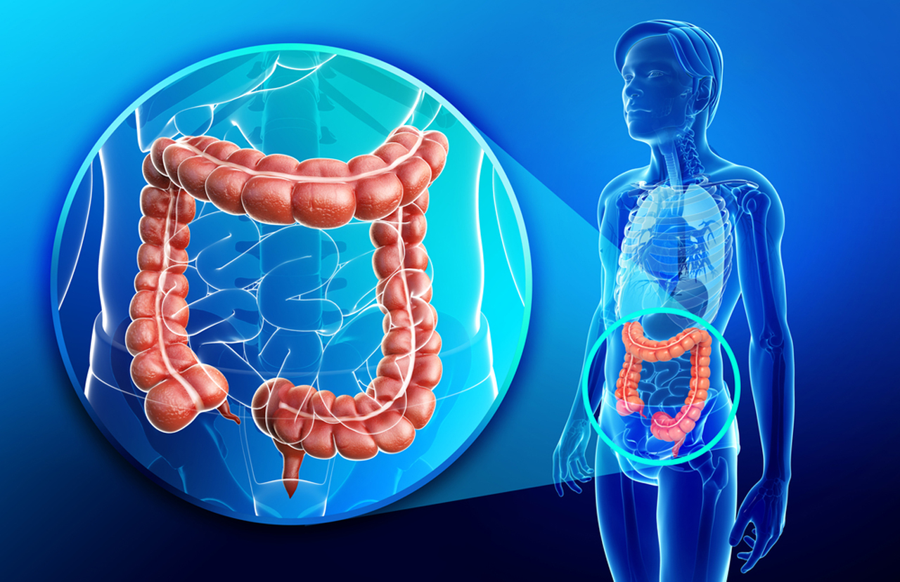 Advanced colon cancer patients undergoing less surgery and ...