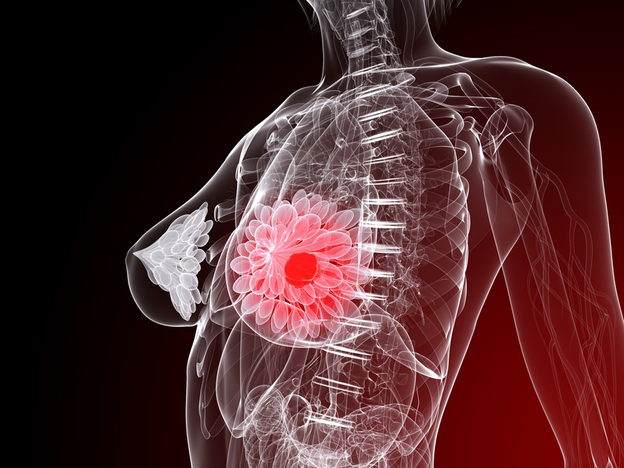 Neo suppressants and breast cancer
