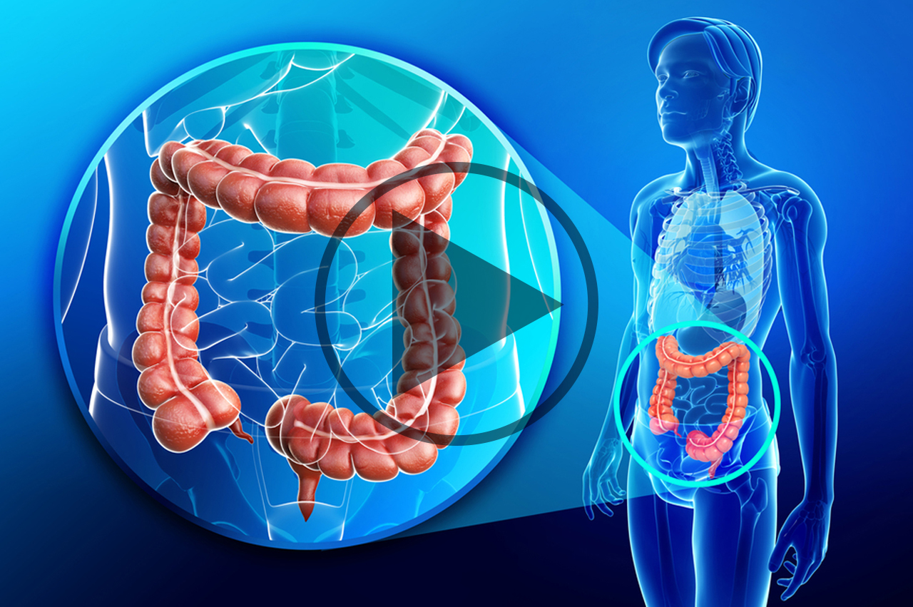 Image Result For Colon Cancer Journal Articles