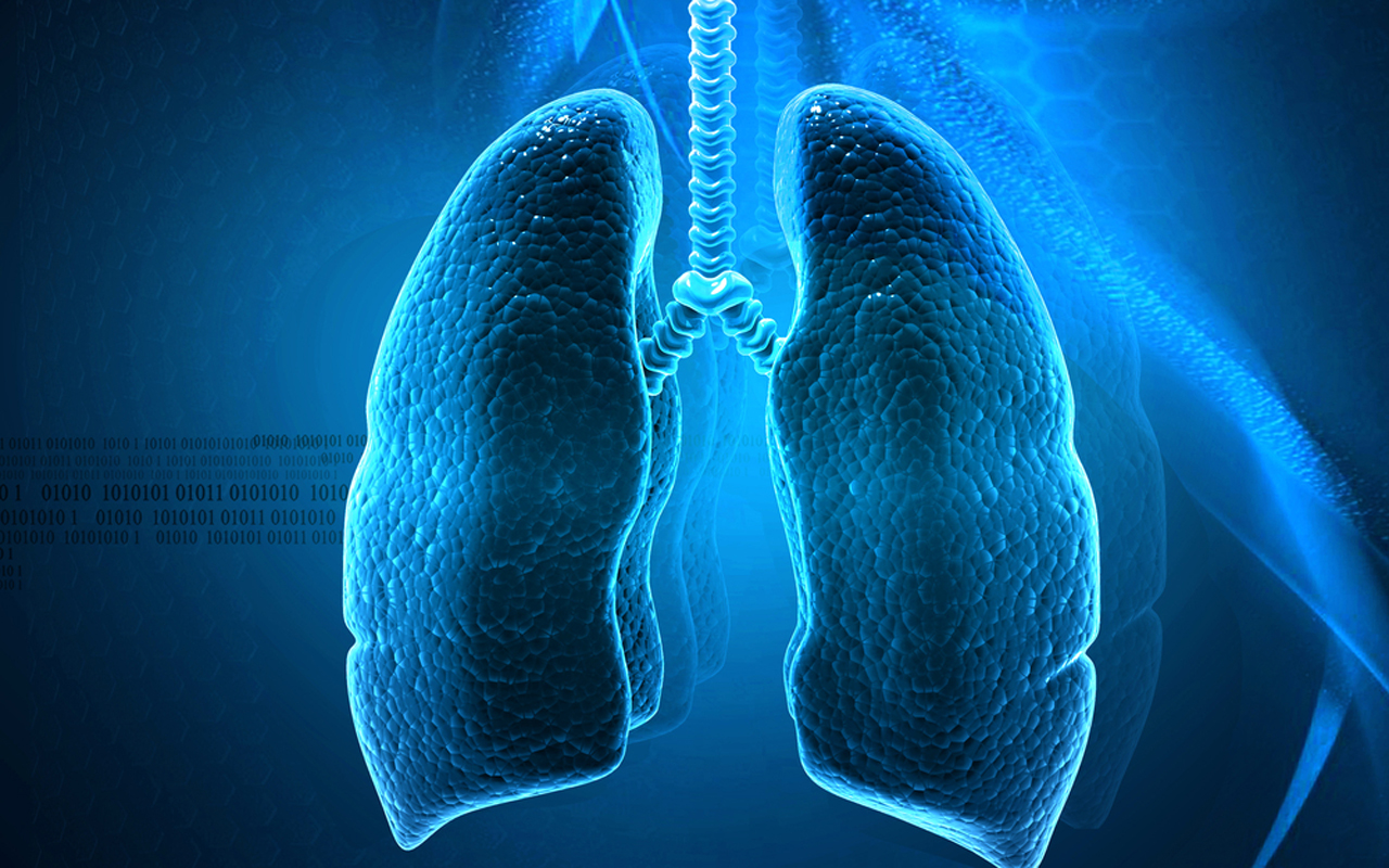 small cell lung cancer case studies New data from the pacific study show that  stage iii non-small cell lung cancer  with physicians on medscape consult share a case email this .