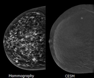 CESM clinical images
