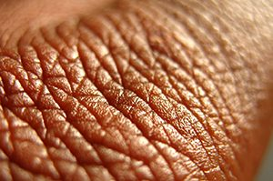 untitled-1_0002_skin-close-up
