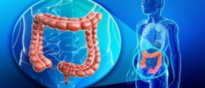 New Study Further Elucidates The Link Between Intestinal Microbes Diet And Colorectal Cancer Oncology Central