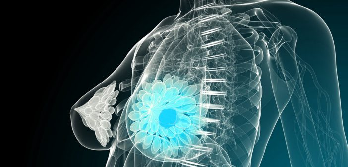 What are the top 5 breast cancer advancements of 2017?