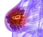 Breast tumor cancer