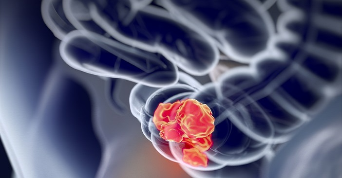 shutterstock_640041184_colorectal tumour