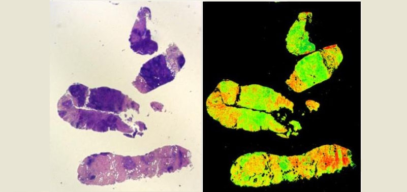 IMAGE: A TRADITIONAL VEGETABLE DYE-STAINED BIOPSY (L) COMPARED TO A DIGISTAIN BIOPSY FROM THE SAME SAMPLE (R).CREDIT: IMPERIAL COLLEGE LONDON