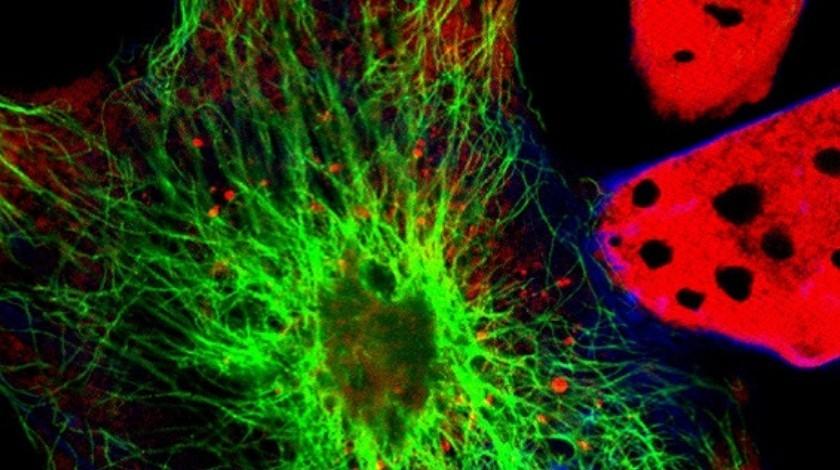 NCRI 2018: Fluorescent marker helps improve accuracy of brain tumor