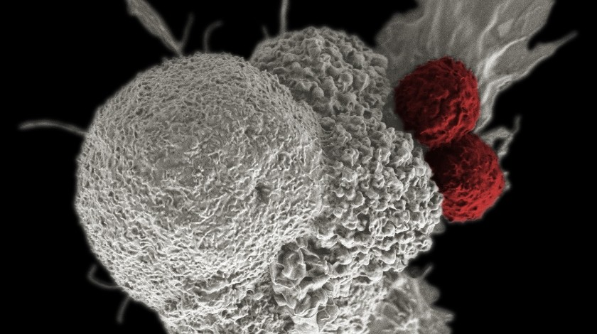 Shown here is a pseudo-colored scanning electron micrograph of an oral squamous cancer cell (white) being attacked by two cytotoxic T cells (red), part of a natural immune response. Nanomedicine researchers are creating personalized cancer vaccines by loading neoantigens identified from the patient's tumor into nanoparticles. When presented with immune stimulants, this activates the patient's own immune system, leading to expansion of tumor-specific cytotoxic T cells.