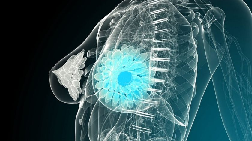 Artificial intelligence could outperform current models at predicting breast cancer risk