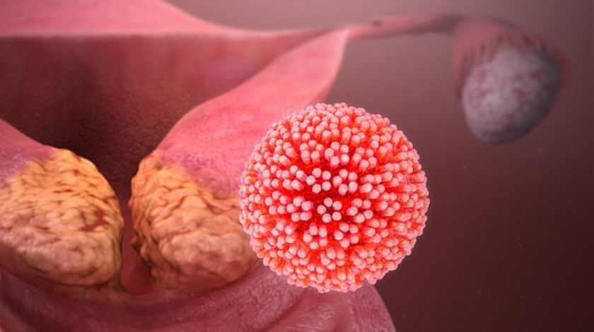 HPV is the most common virus that infects the reproductive tract and Cervical cancer is by far the most common disease caused by