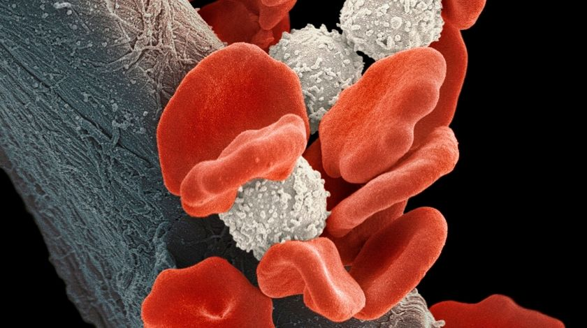 Enasidenib combination therapy boosts remission in acute myeloid leukemia patients