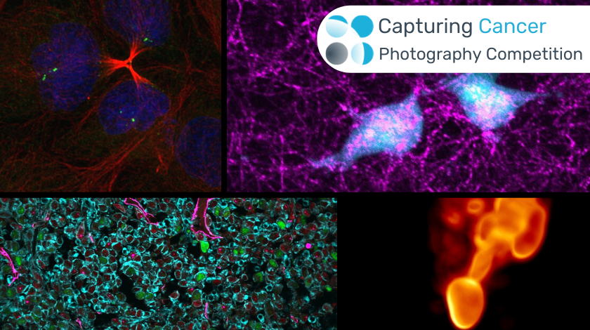 Vote for your winner of the Capturing Cancer: Oncology Central Photography Competition
