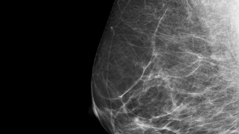 Artificial intelligence could be an effective tool in spotting breast cancer