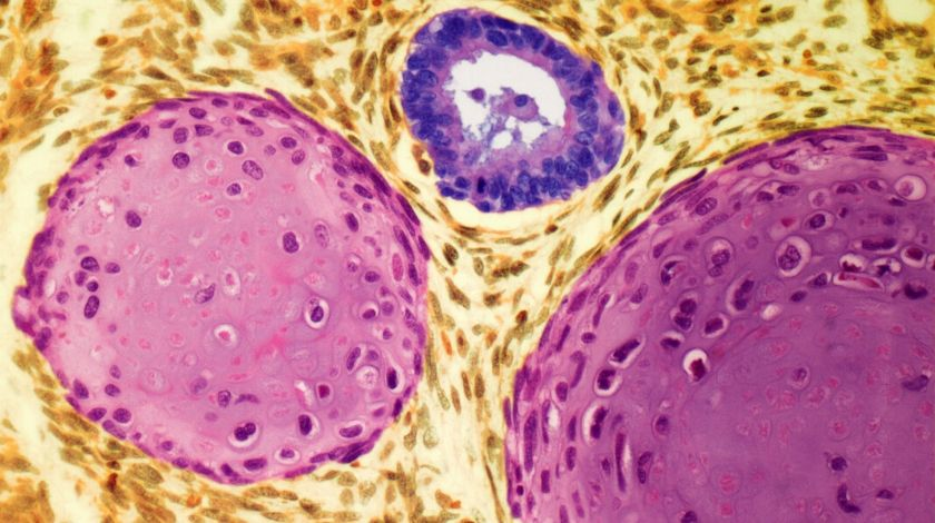 Testicular cancer: could halving the amount of chemotherapy be effective?