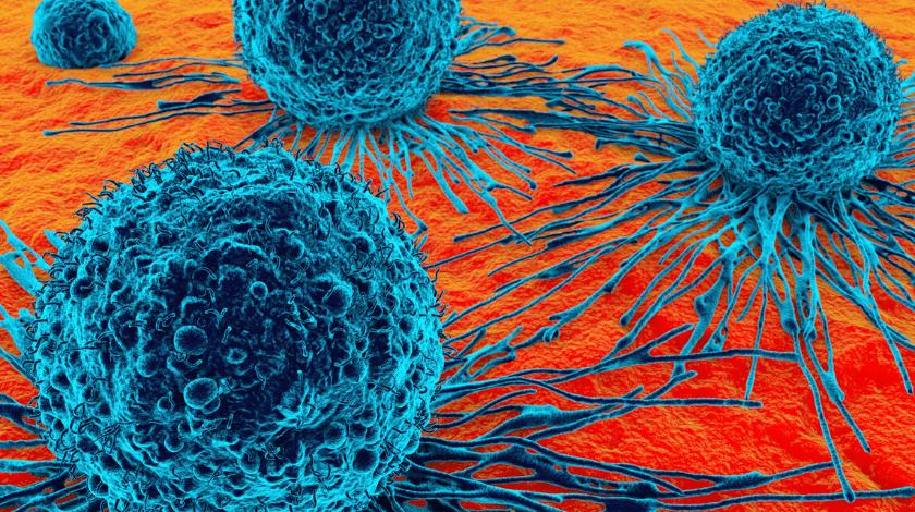 precision medicine oncology
