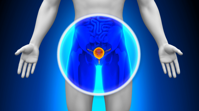 prostate cancer fingerprint