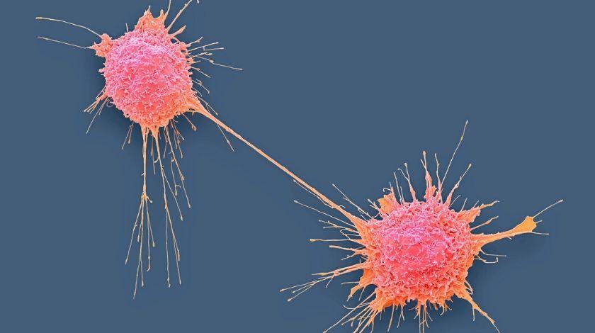 PROfound trial demonstrates efficacy of olaparib in prostate cancer