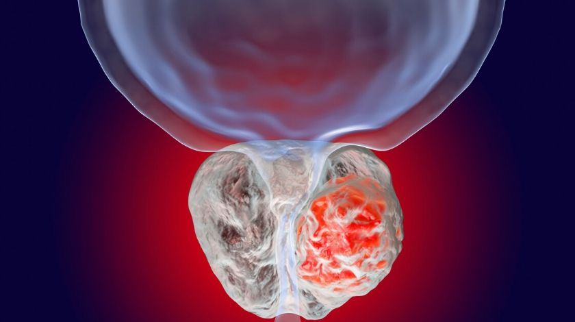 Ipilimumab could be effective in metastatic prostate cancers despite low tumor mutational burden