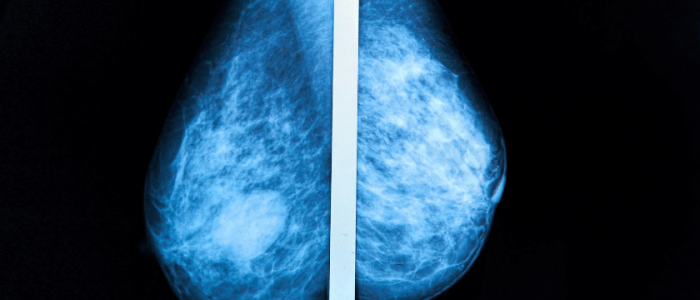 Breast Cancer Screening 3d Mammography Shows Promise