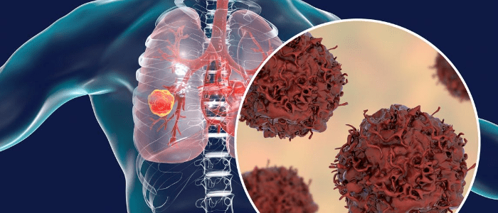 transformation in lung cancer