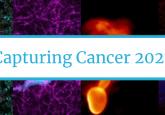 Capturing Cancer 2021