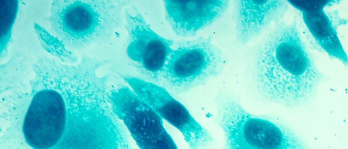 PSMA PET imaging