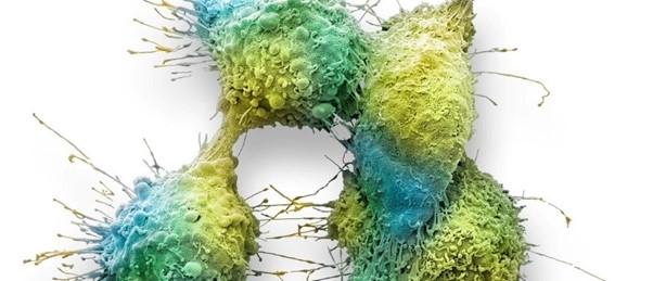 tumor-cells-metastasis